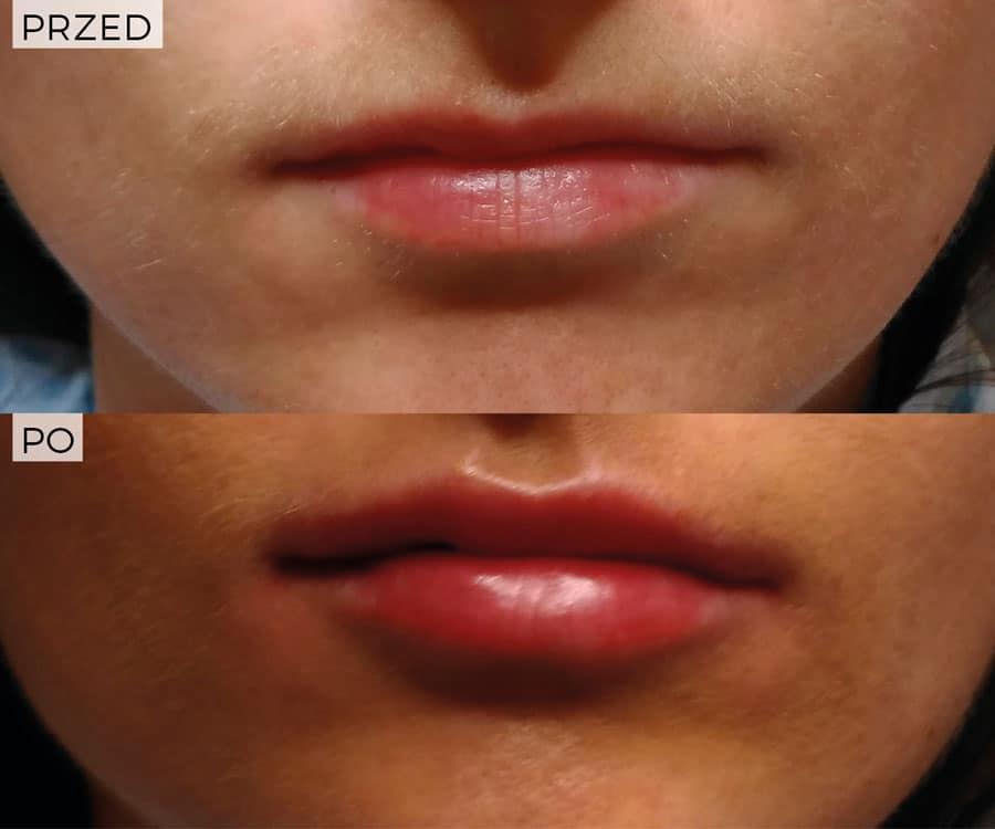 modelowanie ust wklinice Magnopere wKrakowie