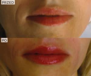 efekt powiększania ust