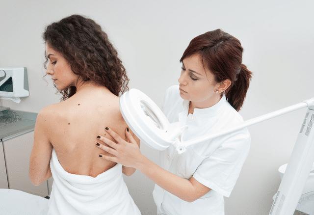 Usuwanie pieprzyków – laserowe czychirurgiczne? Przegląd metod
